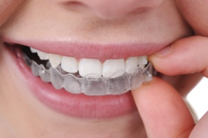 Mount Clemens, MI  Invisalign at Riverside Family Dental